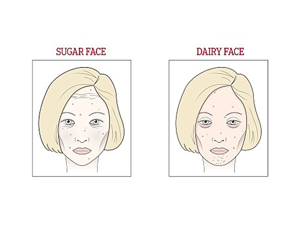 Bên trái là gương mặt dư đường và bên phải là gương mặt dư sữa