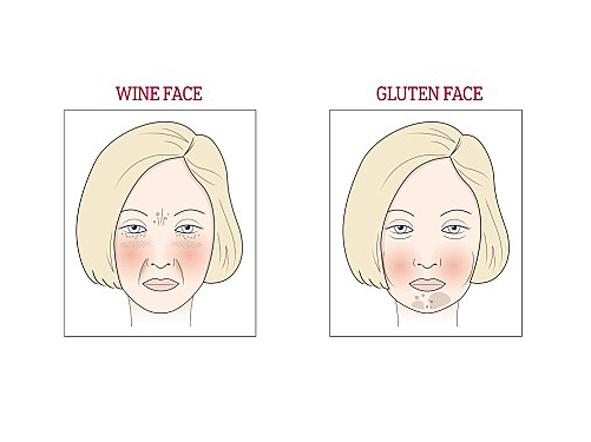 Bên trái là gương mặt dư cồn, và bên trái là gương mặt dư gluten