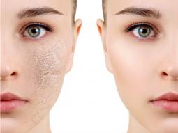 7 cách chữa da mặt bị nẻ mốc, lấy lại làn da mịn màng